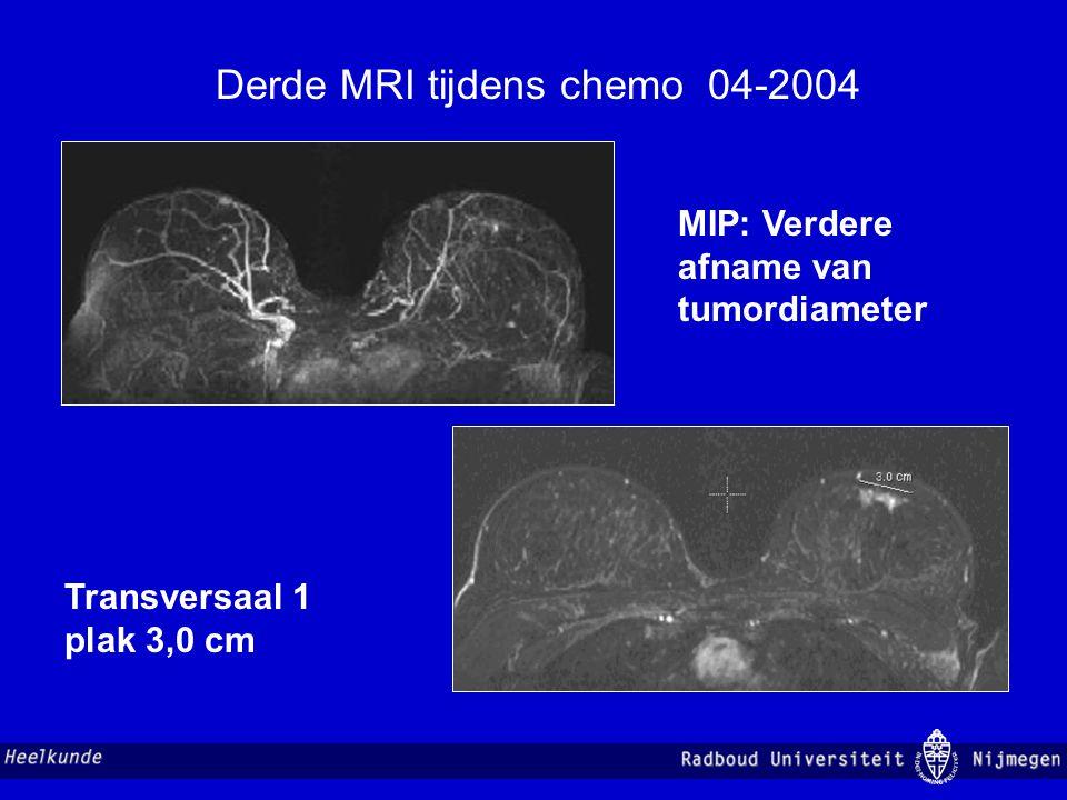 Derde MRI tijdens chemo 04-2004