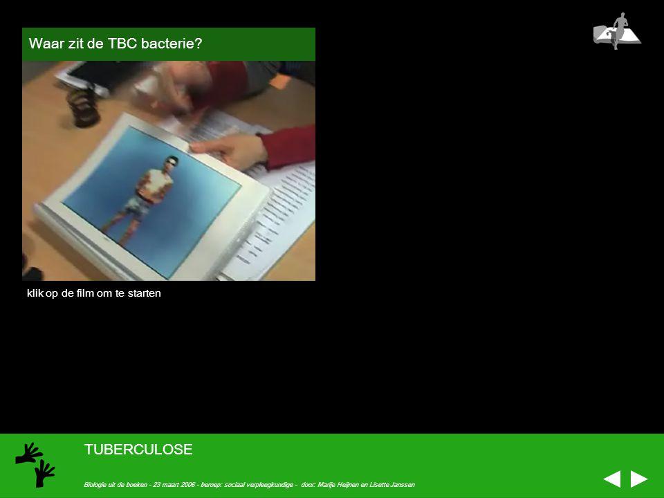 Waar zit de TBC bacterie