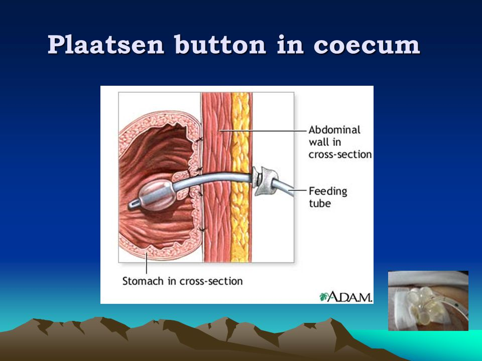 Plaatsen button in coecum