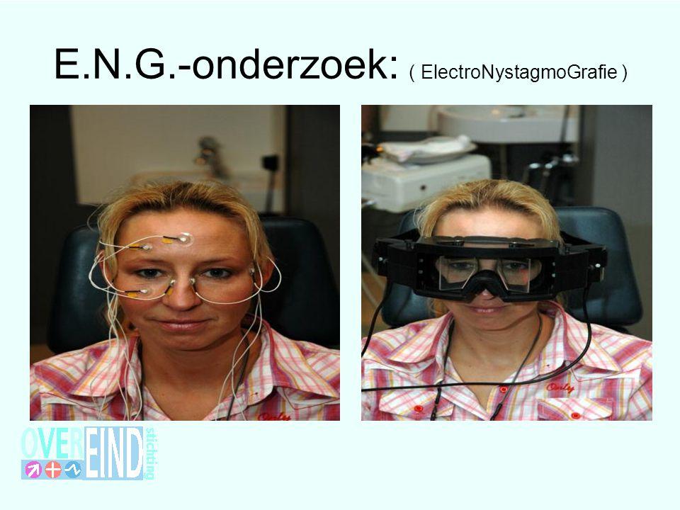 E.N.G.-onderzoek: ( ElectroNystagmoGrafie )