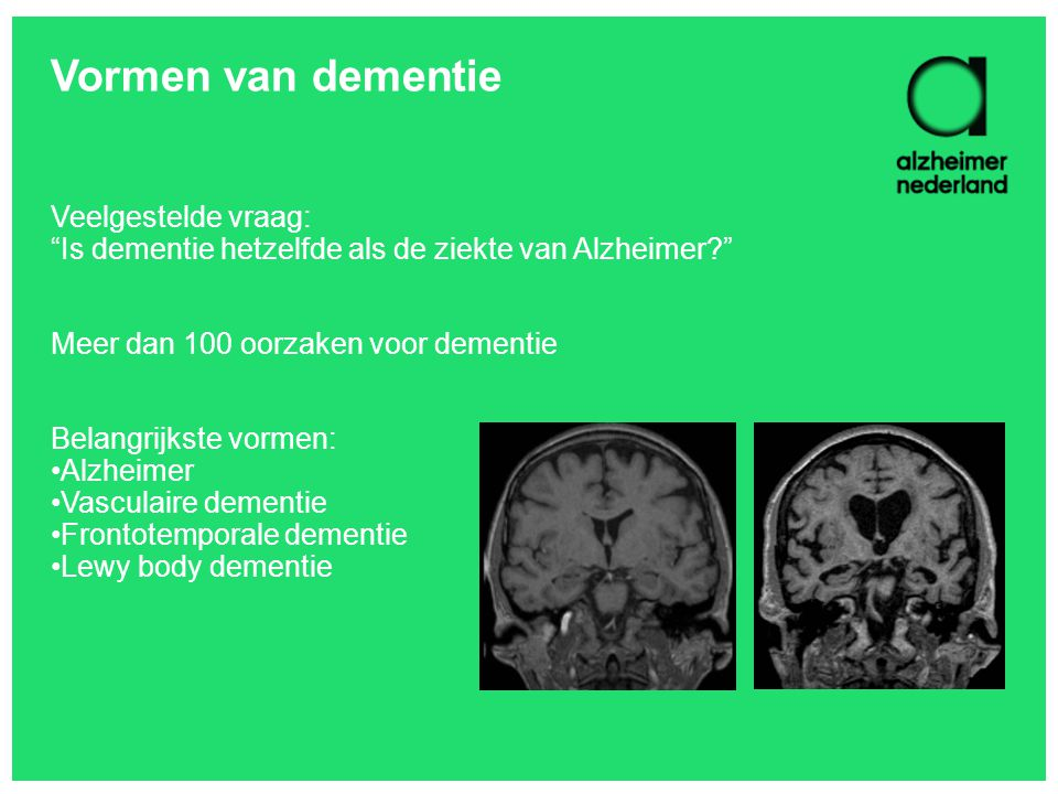 Vormen van dementie Veelgestelde vraag: Is dementie hetzelfde als de ziekte van Alzheimer Meer dan 100 oorzaken voor dementie.