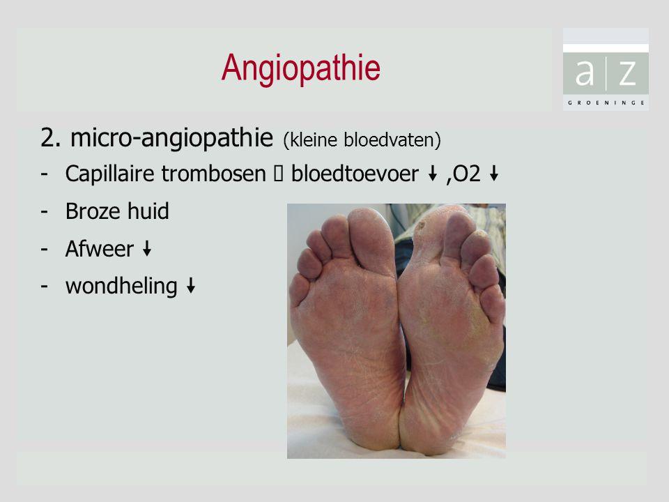 Angiopathie 2. micro-angiopathie (kleine bloedvaten)
