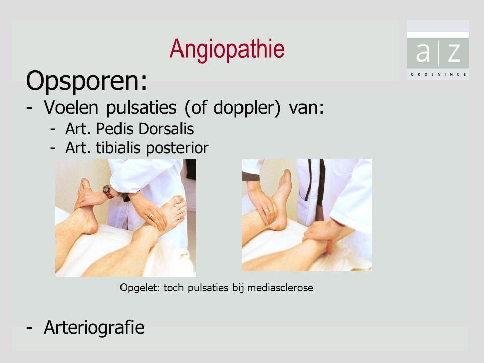 Angiopathie Opsporen: Voelen pulsaties (of doppler) van: