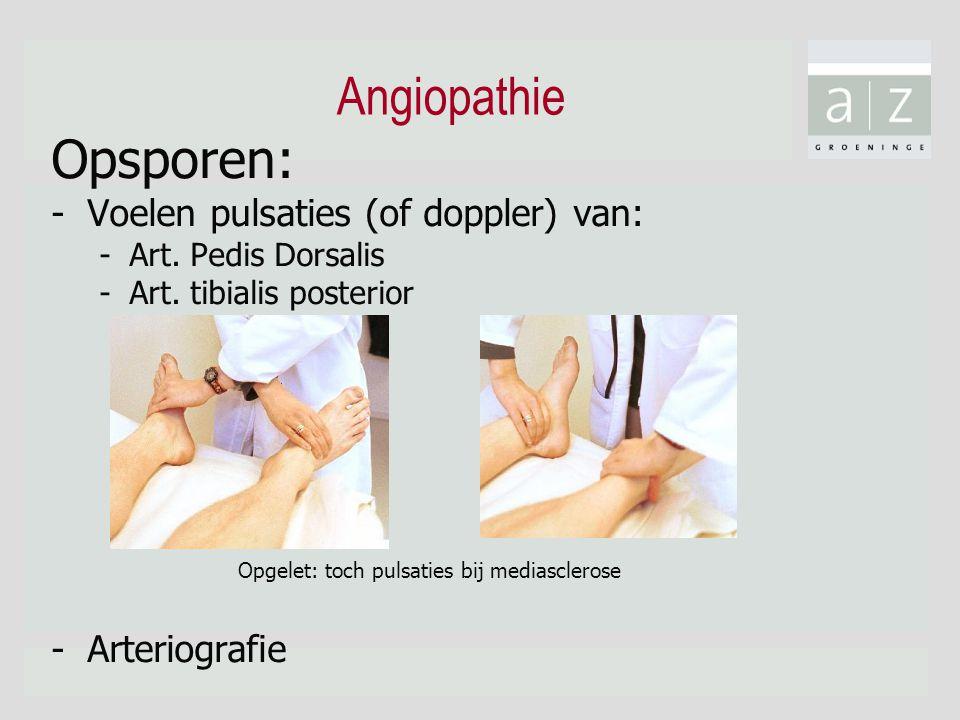 Angiopathie Opsporen: Voelen pulsaties (of doppler) van: