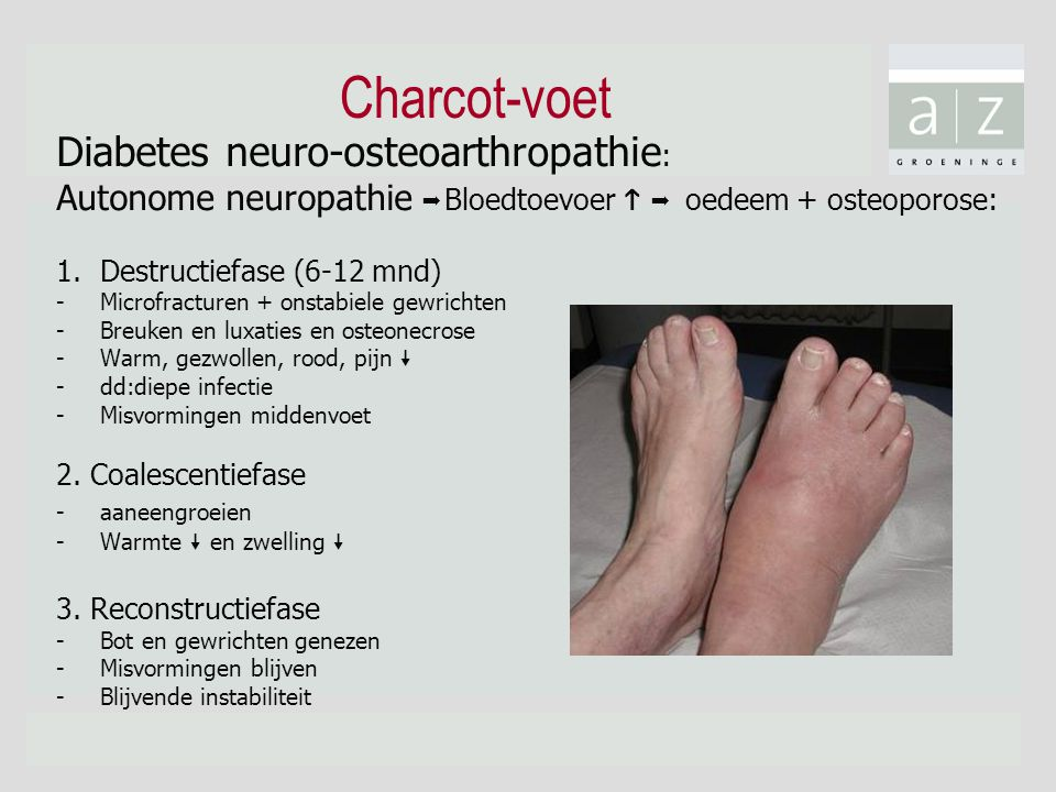 Charcot-voet Diabetes neuro-osteoarthropathie:
