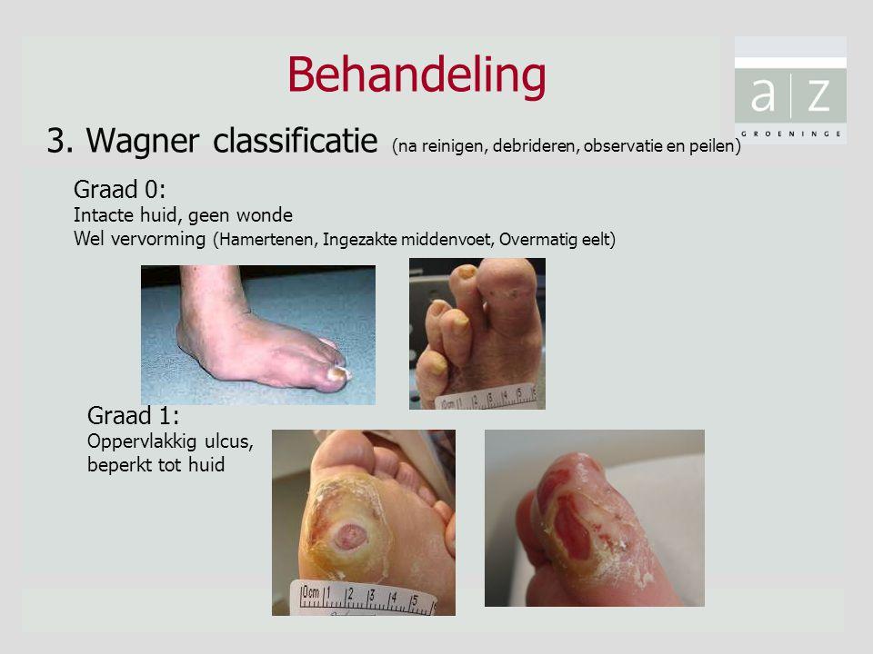 Behandeling 3. Wagner classificatie (na reinigen, debrideren, observatie en peilen) Graad 0: Intacte huid, geen wonde.