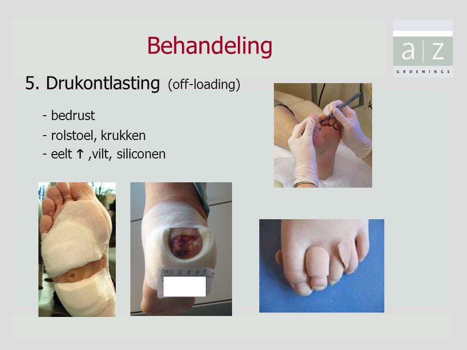 Behandeling - bedrust 5. Drukontlasting (off-loading)
