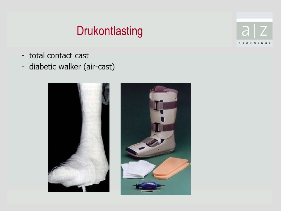 Drukontlasting - total contact cast - diabetic walker (air-cast)