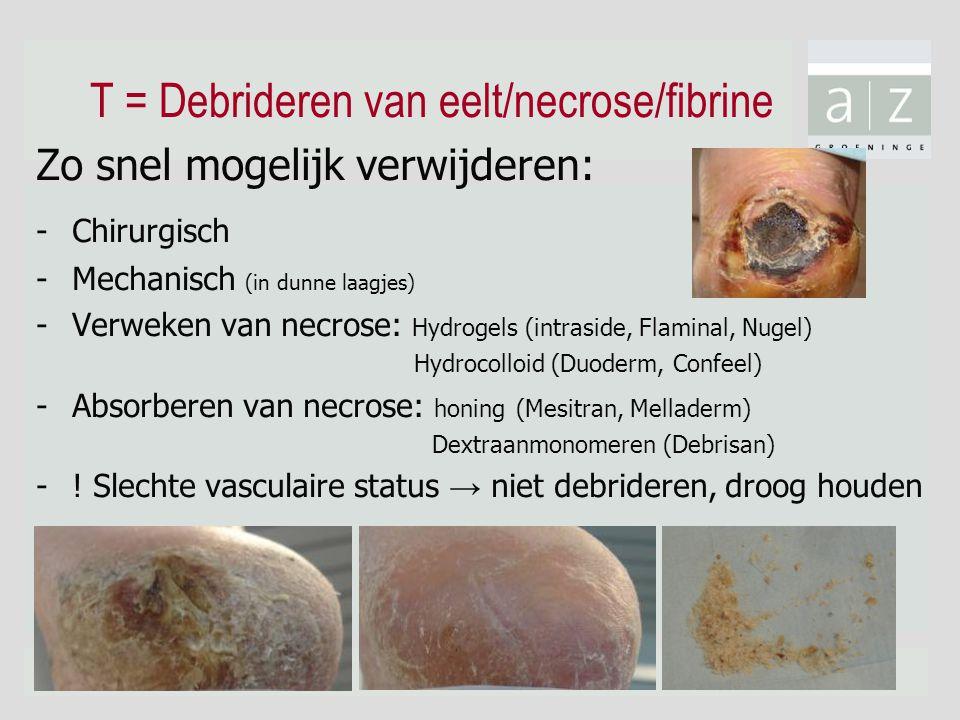 T = Debrideren van eelt/necrose/fibrine