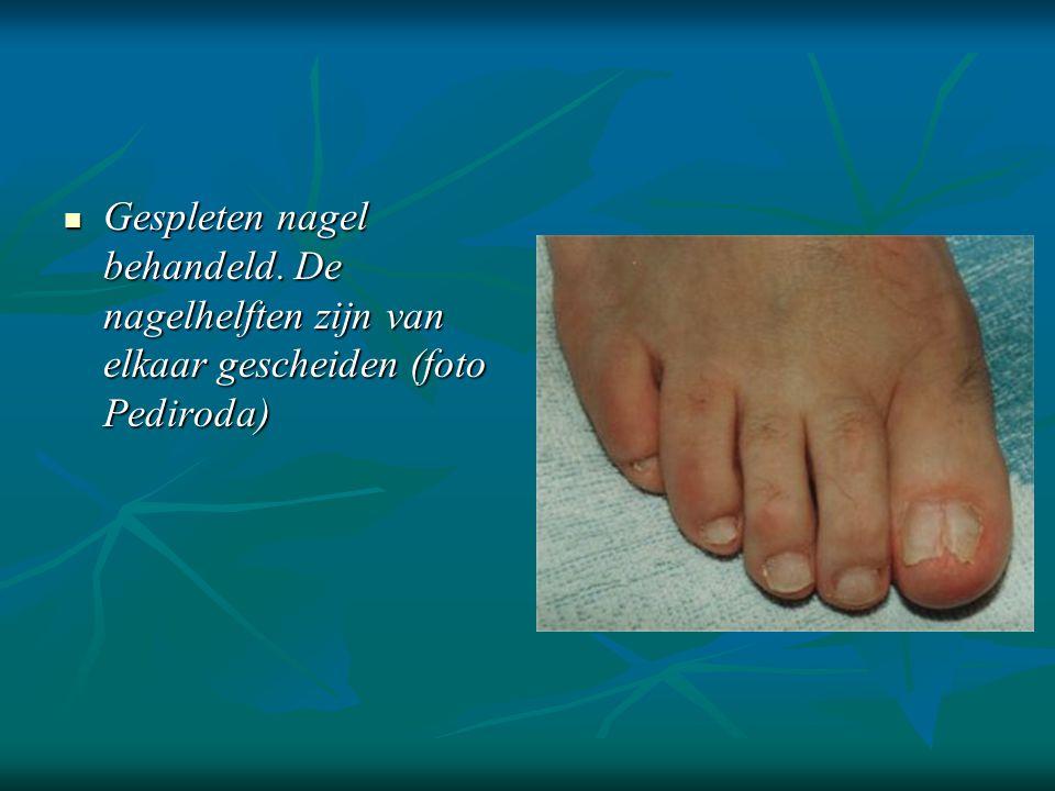 Gespleten nagel behandeld