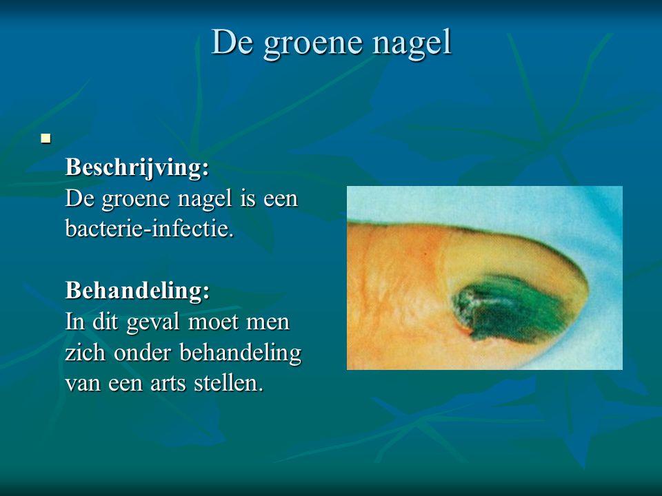 De groene nagel