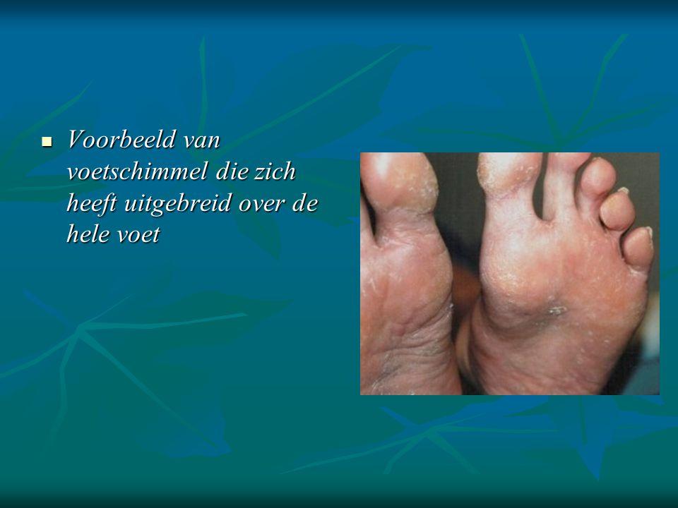 Voorbeeld van voetschimmel die zich heeft uitgebreid over de hele voet