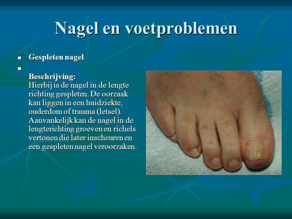 Nagel en voetproblemen