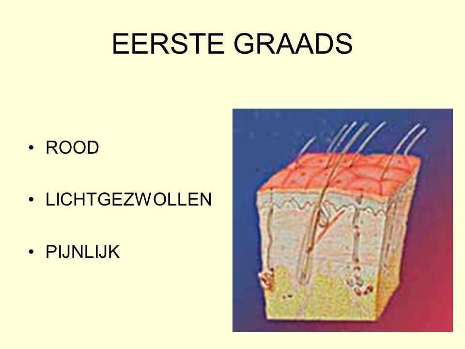 EERSTE GRAADS ROOD LICHTGEZWOLLEN PIJNLIJK