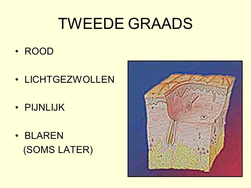 TWEEDE GRAADS ROOD LICHTGEZWOLLEN PIJNLIJK BLAREN (SOMS LATER)