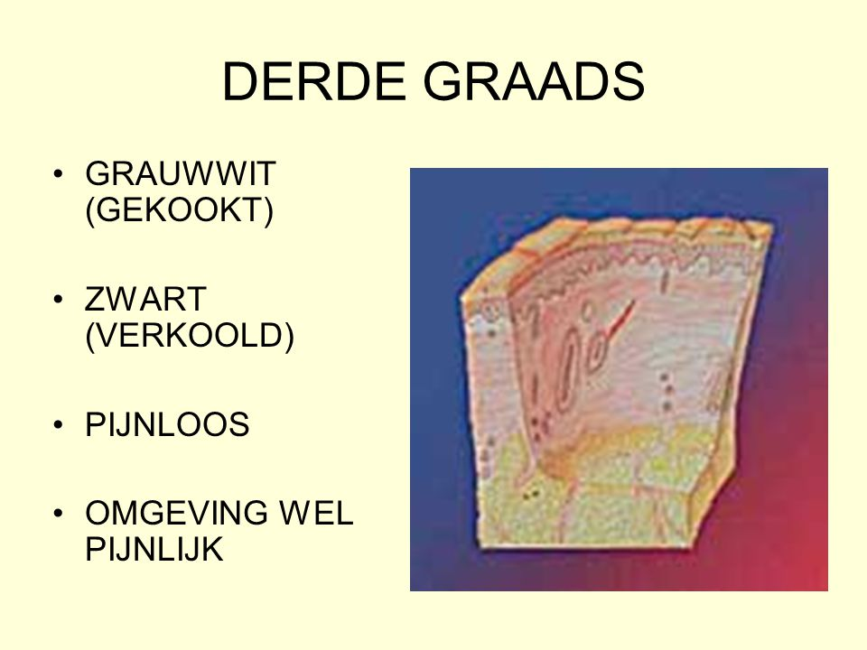 DERDE GRAADS GRAUWWIT (GEKOOKT) ZWART (VERKOOLD) PIJNLOOS