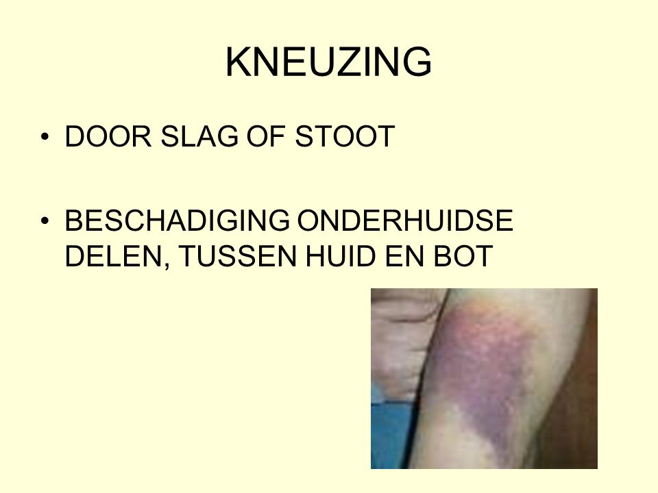KNEUZING DOOR SLAG OF STOOT