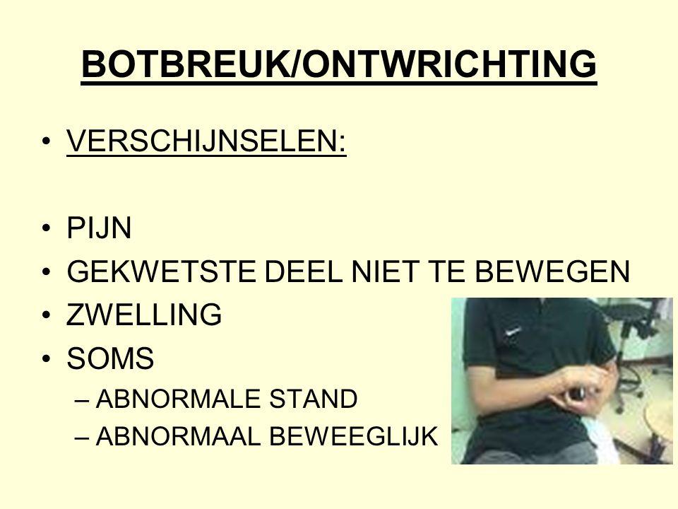 BOTBREUK/ONTWRICHTING
