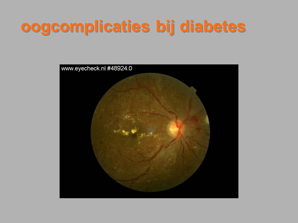 oogcomplicaties bij diabetes