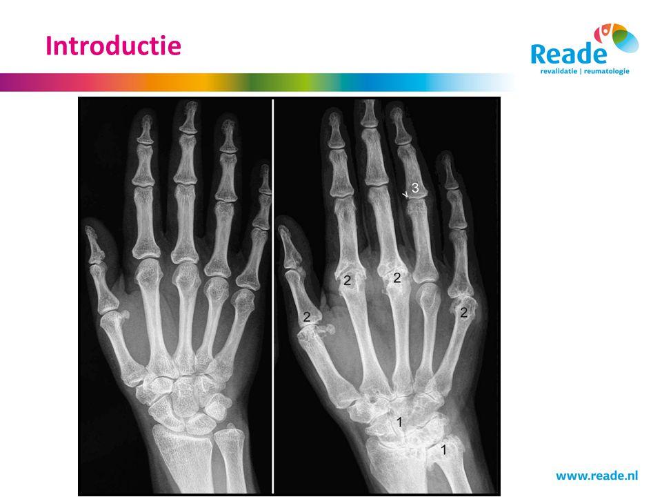 Introductie Verhaal van één reumatoloog!