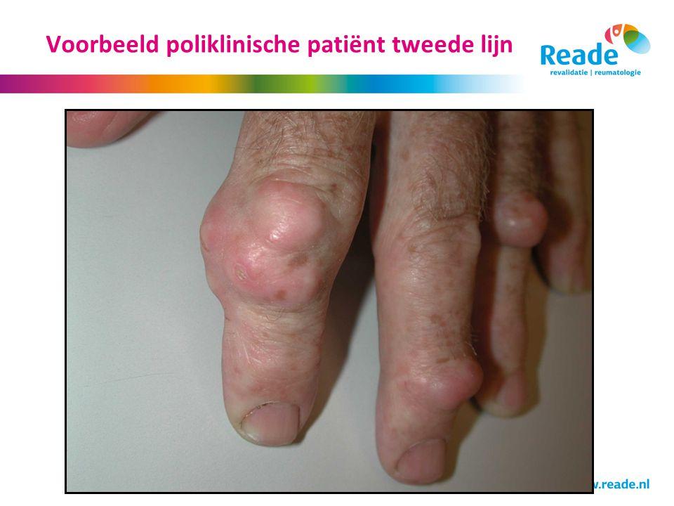 Voorbeeld poliklinische patiënt tweede lijn