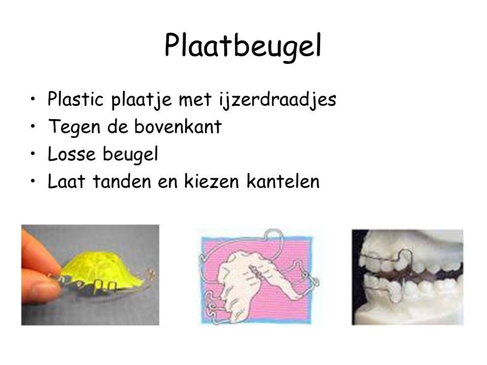 Plaatbeugel Plastic plaatje met ijzerdraadjes Tegen de bovenkant