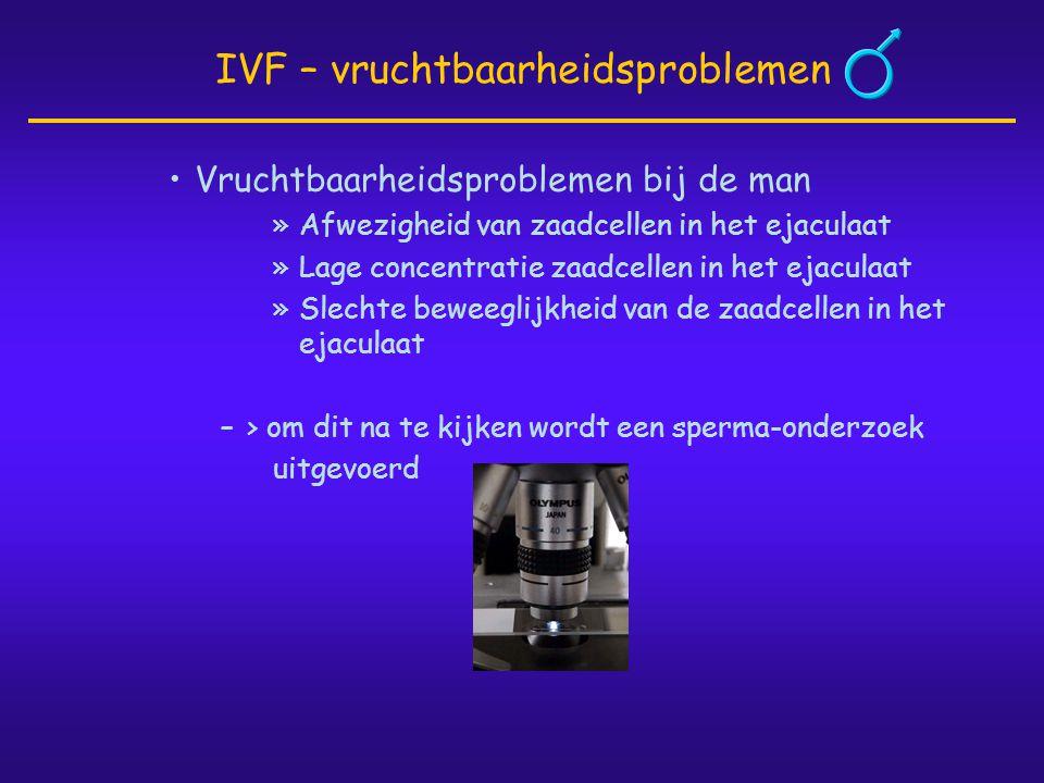 IVF – vruchtbaarheidsproblemen