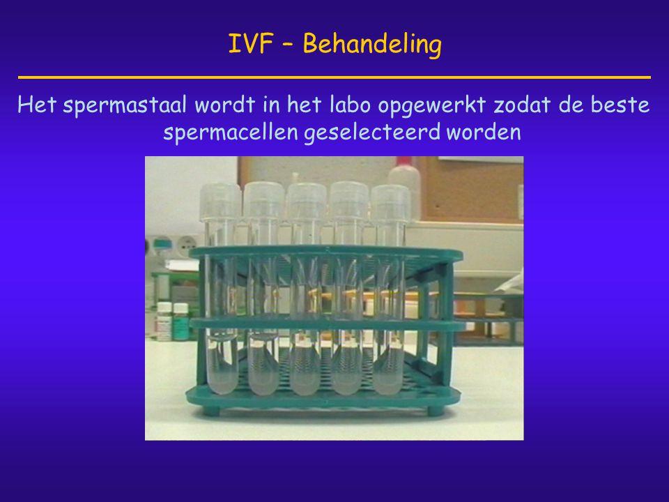 IVF – Behandeling Het spermastaal wordt in het labo opgewerkt zodat de beste spermacellen geselecteerd worden.