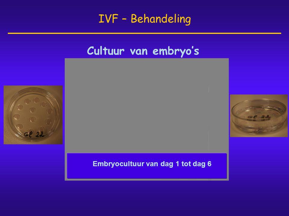 IVF – Behandeling Cultuur van embryo's