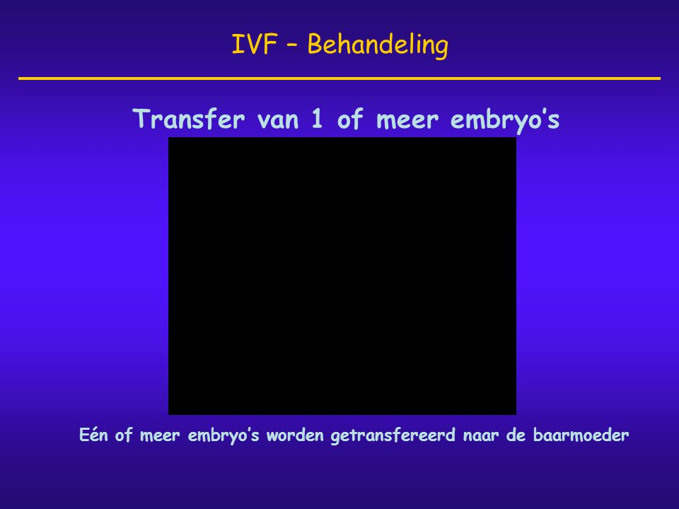 Transfer van 1 of meer embryo's
