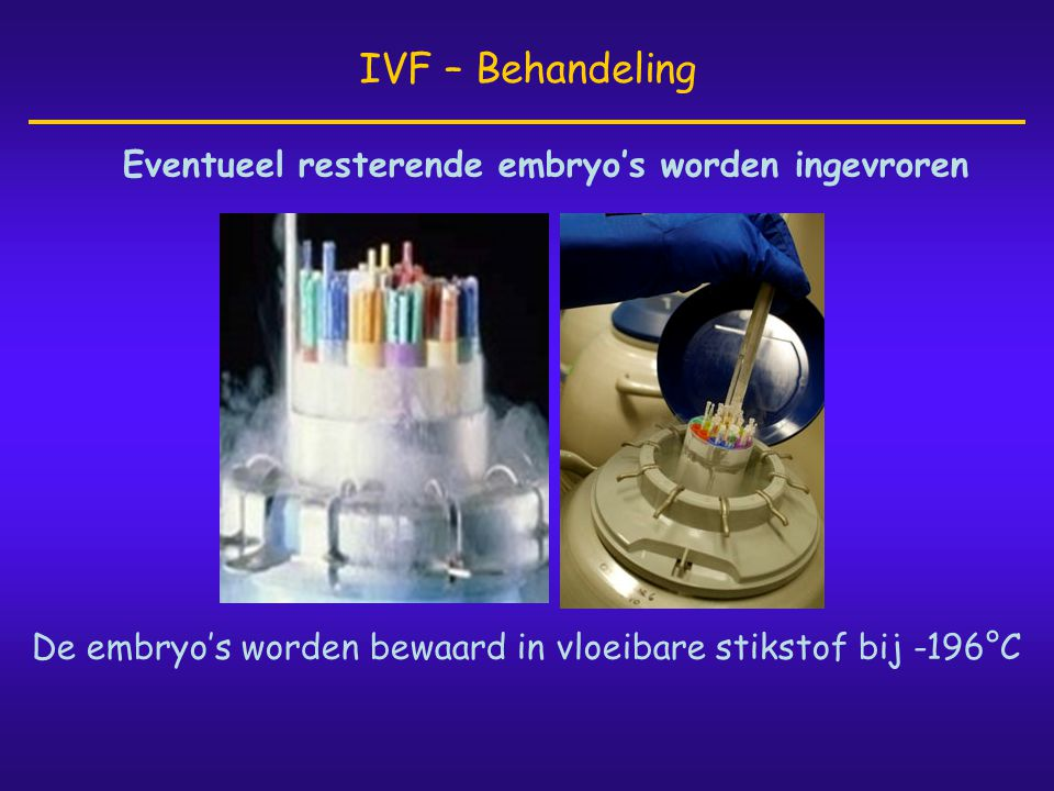 IVF – Behandeling Eventueel resterende embryo's worden ingevroren