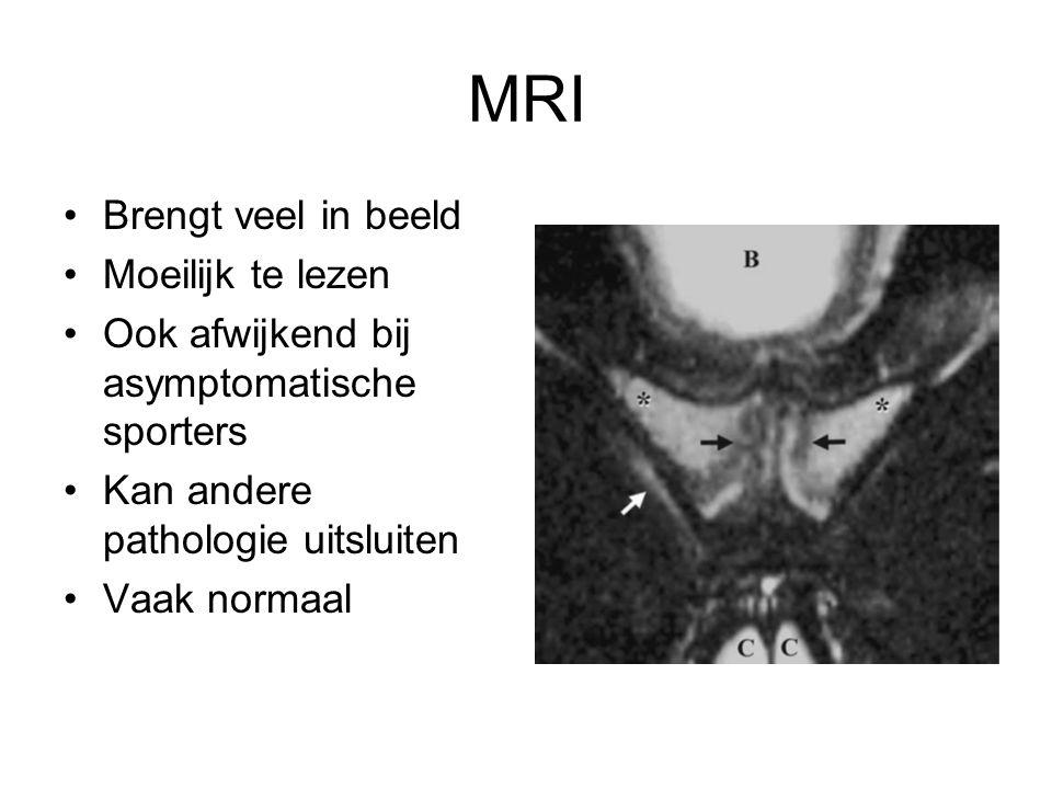 MRI Brengt veel in beeld Moeilijk te lezen