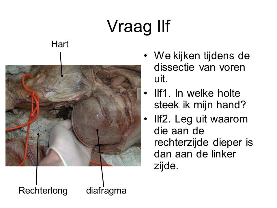 Vraag IIf We kijken tijdens de dissectie van voren uit.