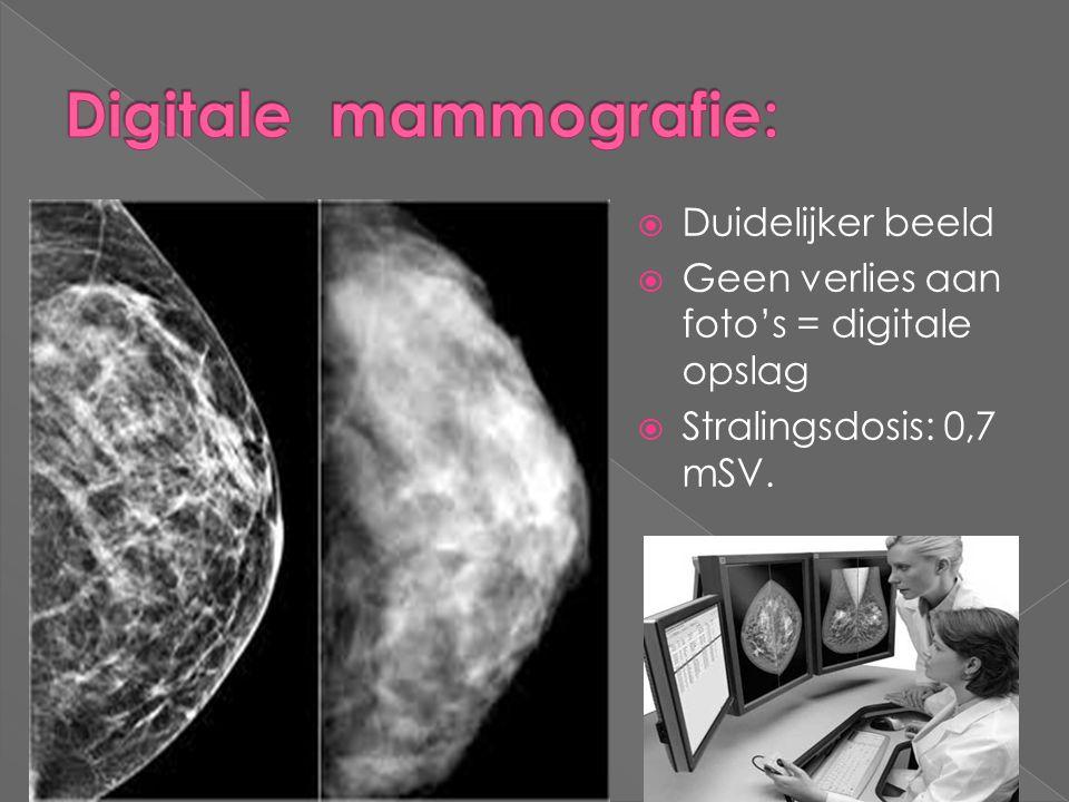 Digitale mammografie: