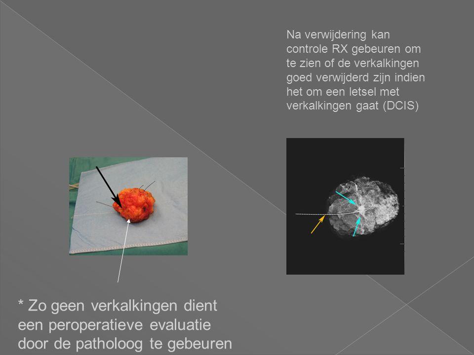 Na verwijdering kan controle RX gebeuren om te zien of de verkalkingen goed verwijderd zijn indien het om een letsel met verkalkingen gaat (DCIS)