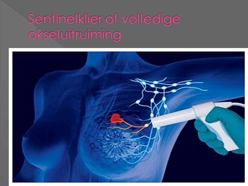 Sentinelklier of volledige okseluitruiming