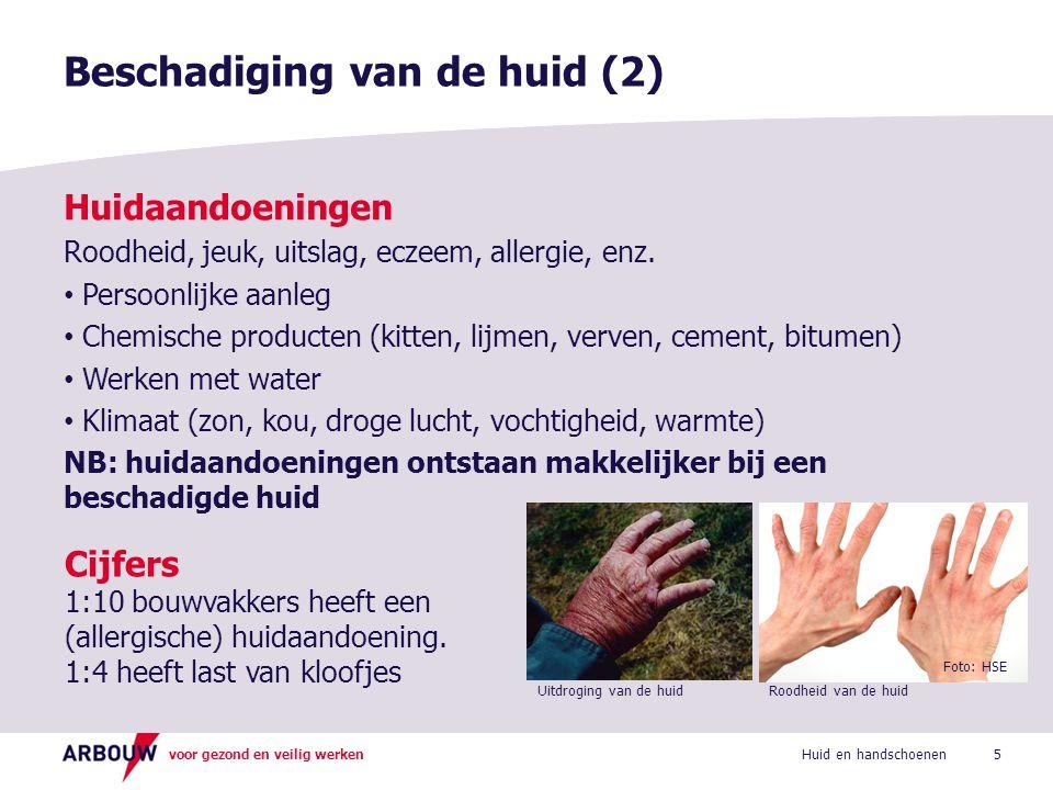 Beschadiging van de huid (2)