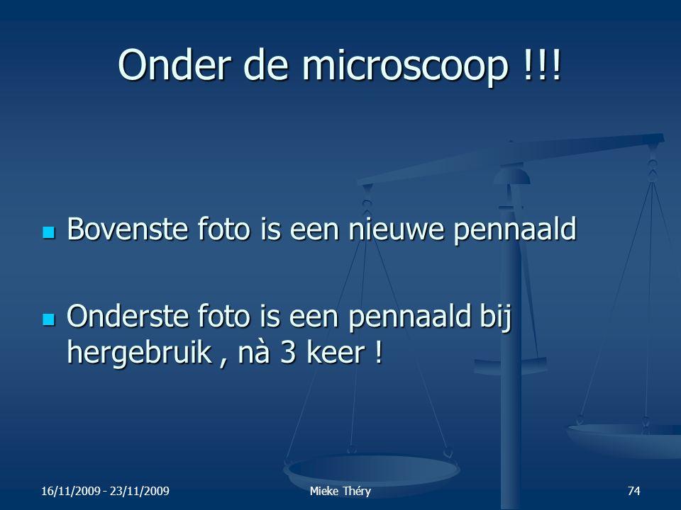 Onder de microscoop !!! Bovenste foto is een nieuwe pennaald