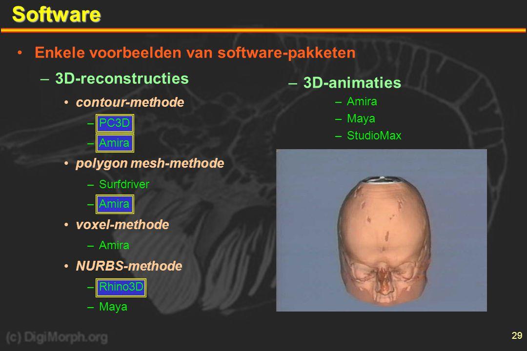 Software Enkele voorbeelden van software-pakketen 3D-reconstructies