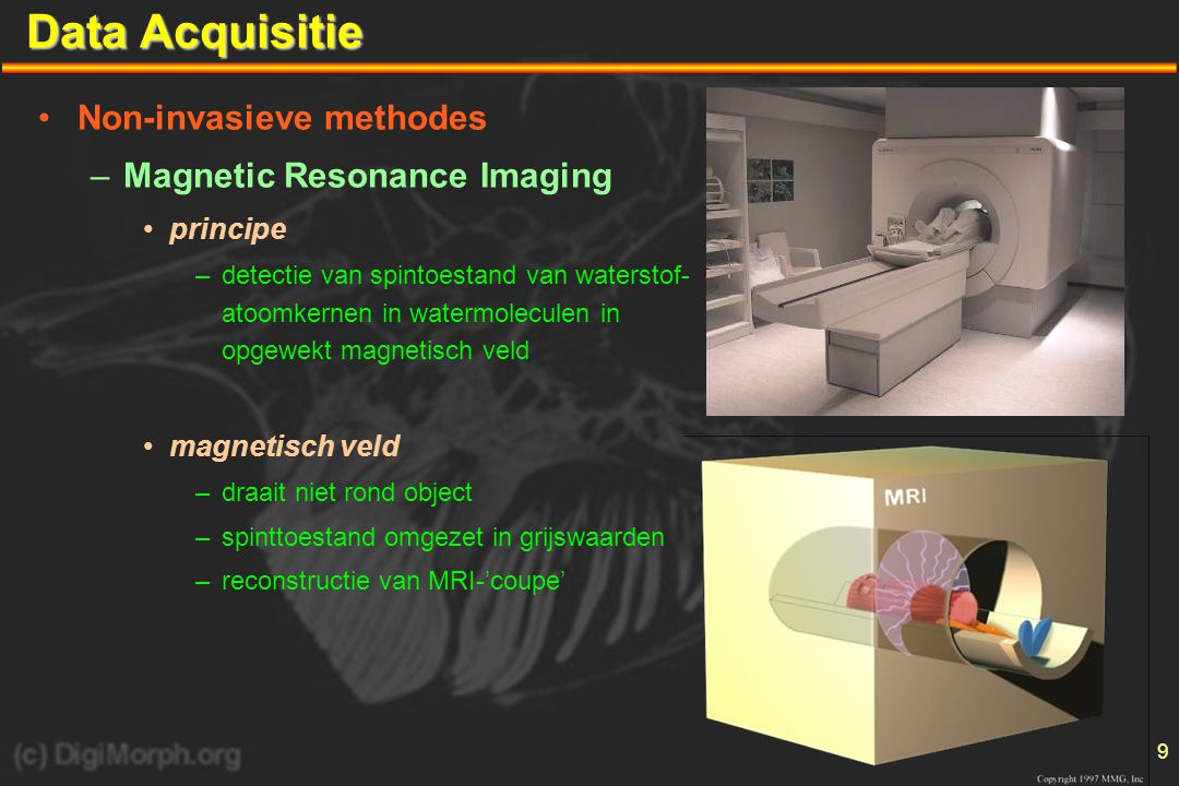 Data Acquisitie Non-invasieve methodes Magnetic Resonance Imaging