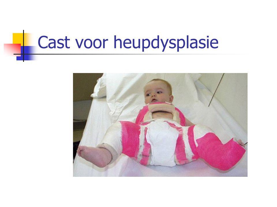 Cast voor heupdysplasie