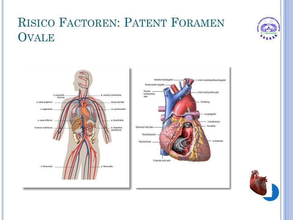 Risico Factoren: Patent Foramen Ovale