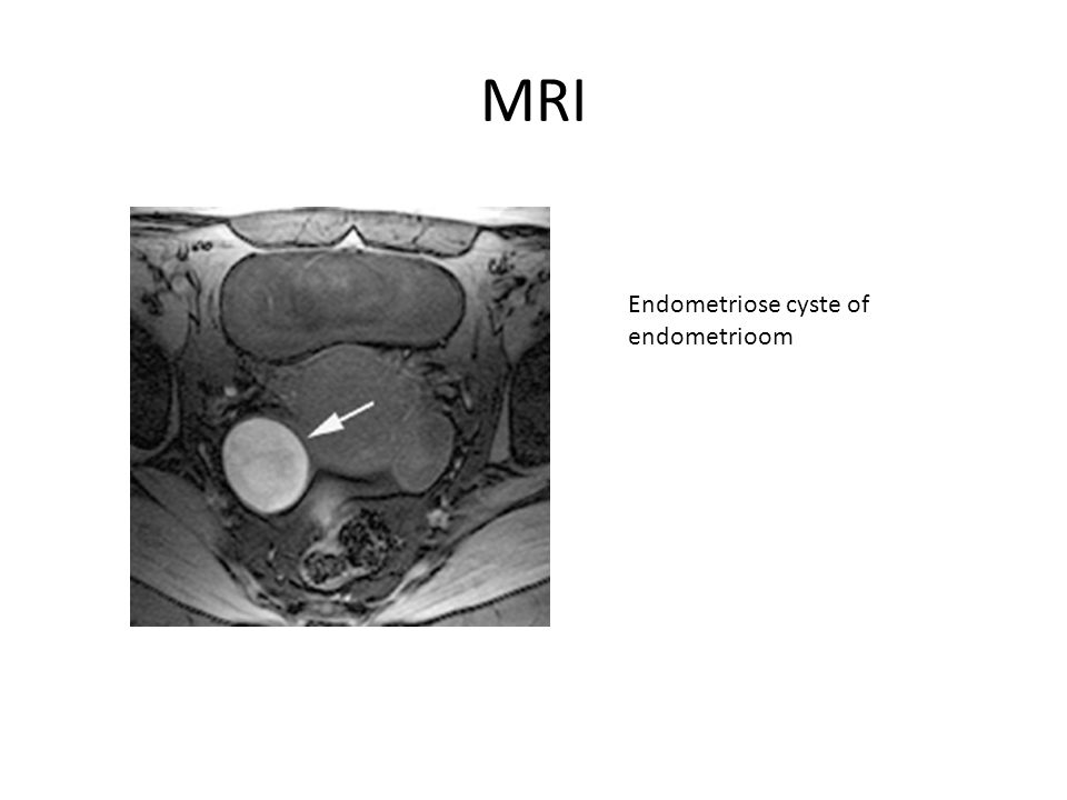 MRI Endometriose cyste of endometrioom