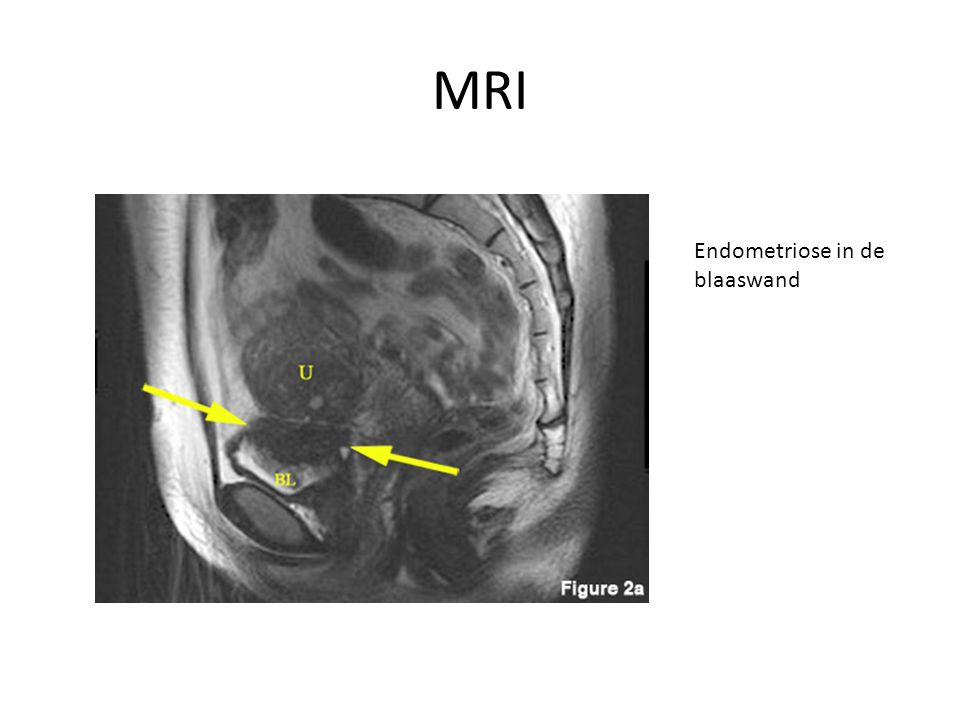 MRI Endometriose in de blaaswand
