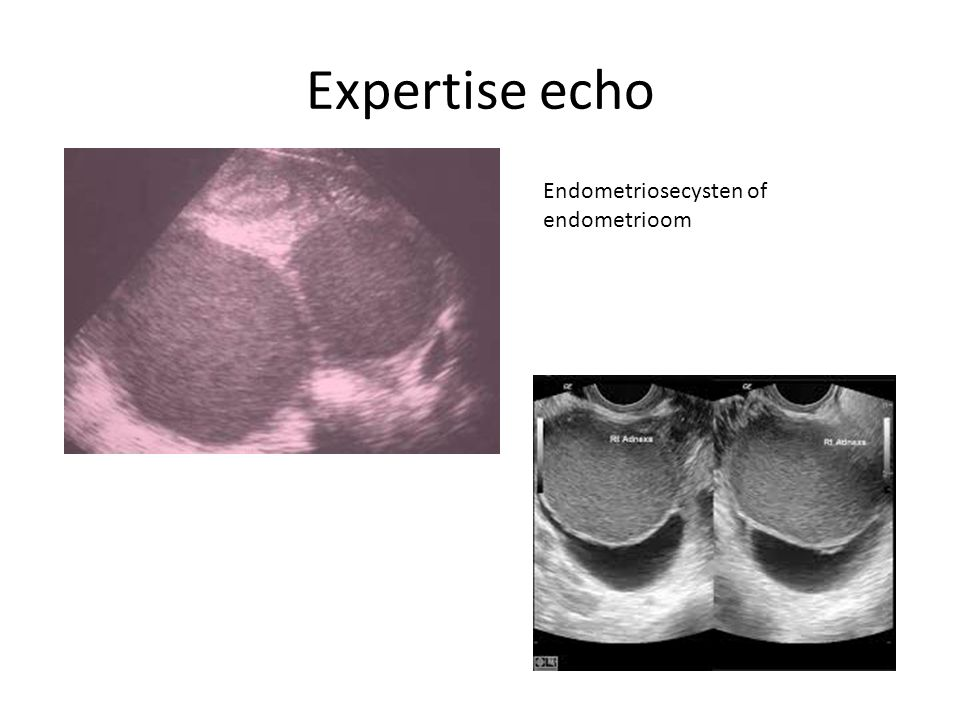 Expertise echo Endometriosecysten of endometrioom
