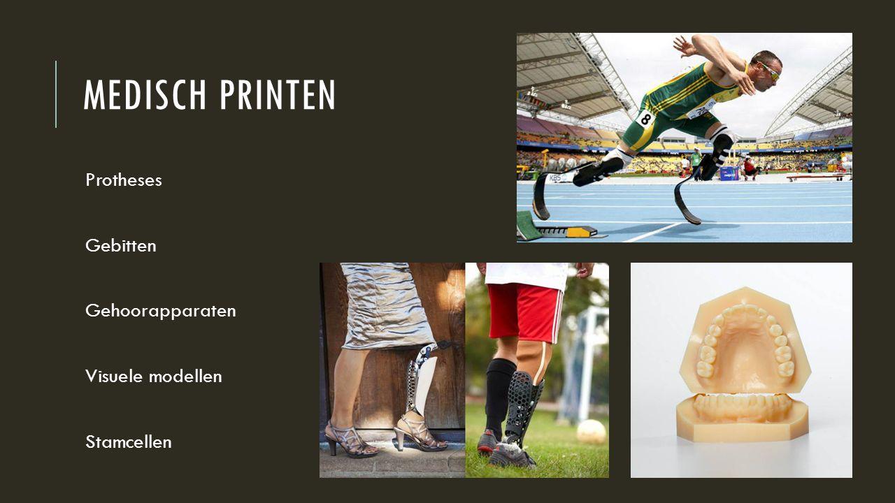 Medisch printen Protheses Gebitten Gehoorapparaten Visuele modellen