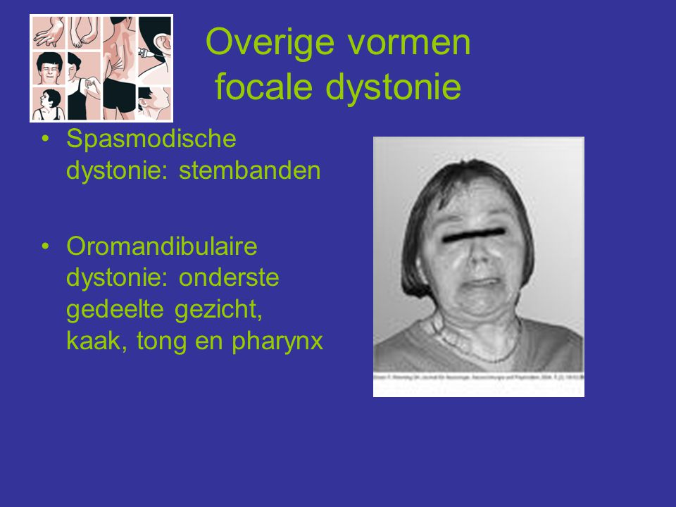Overige vormen focale dystonie