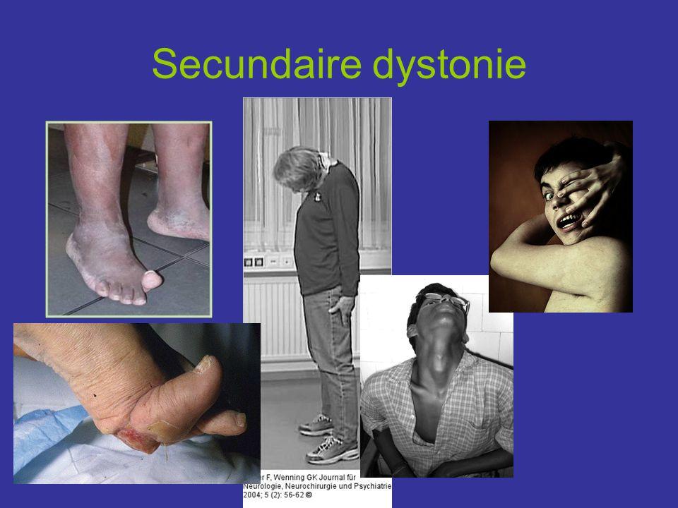 Secundaire dystonie Late fase striatal toe bij parkinson