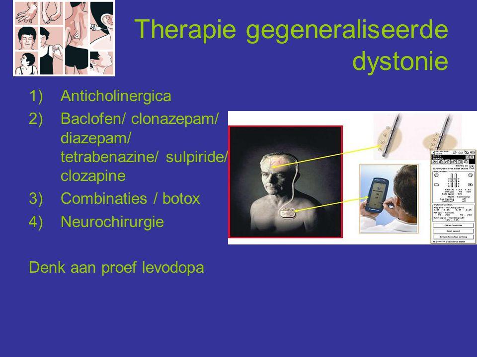 Therapie gegeneraliseerde dystonie