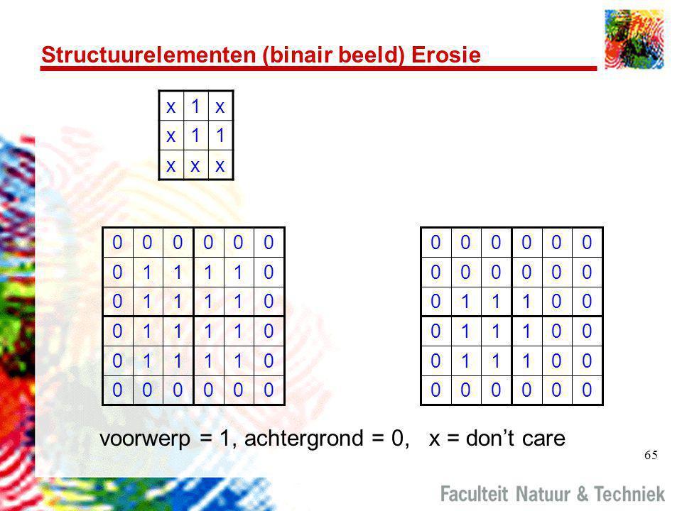 Structuurelementen (binair beeld) Erosie